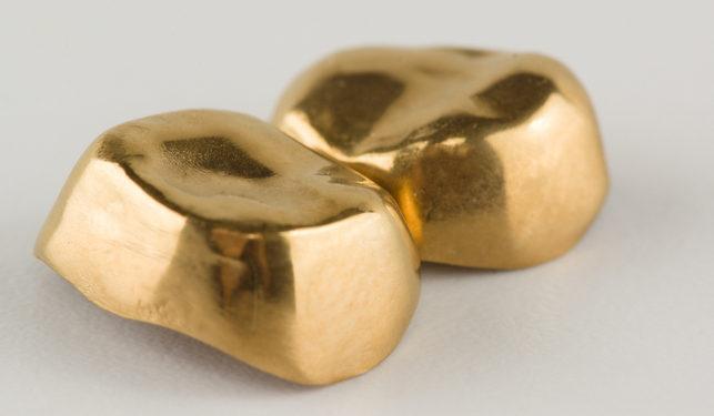 Rachat d'Or Dentaire, dents en or